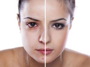 alergia-cosmeticos-piel-irritada