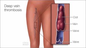 trombosis-y-embarazo